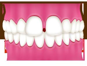 前歯のすき間が気になる・前歯の矯正をお考えの方