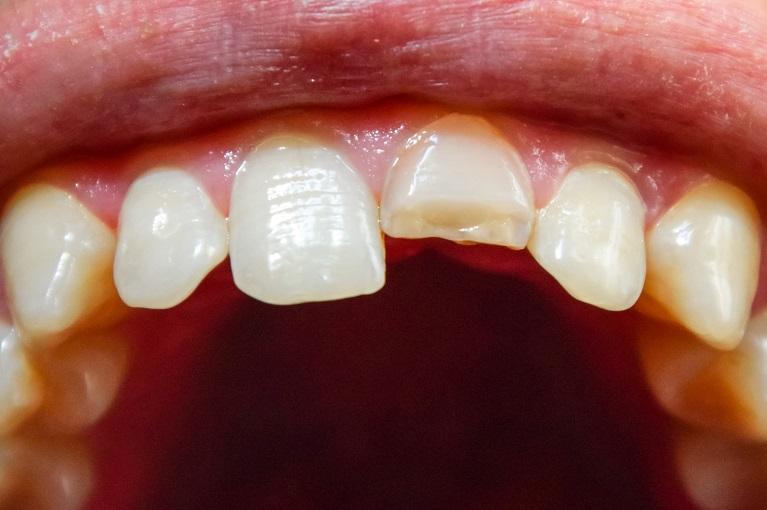 前歯が欠けた・折れた・ぶつけたなどはまず歯科医院へ