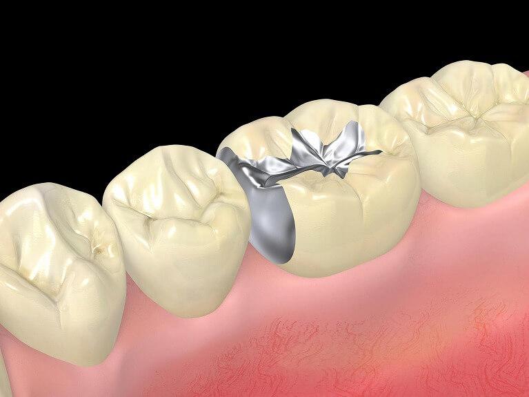 虫歯になりやすいだけではない銀歯のデメリット