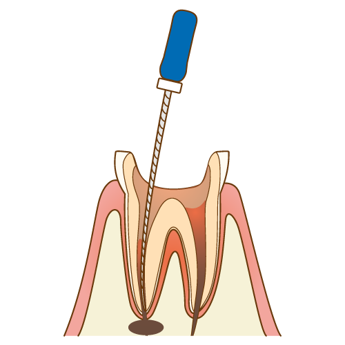 歯の根元に細菌が繁殖している