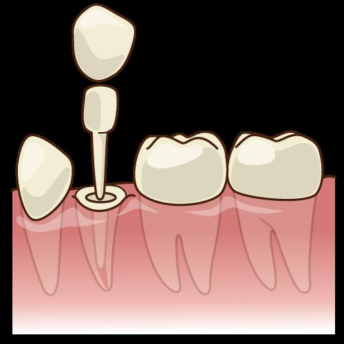 差し歯の土台をグラスファイバーに替える