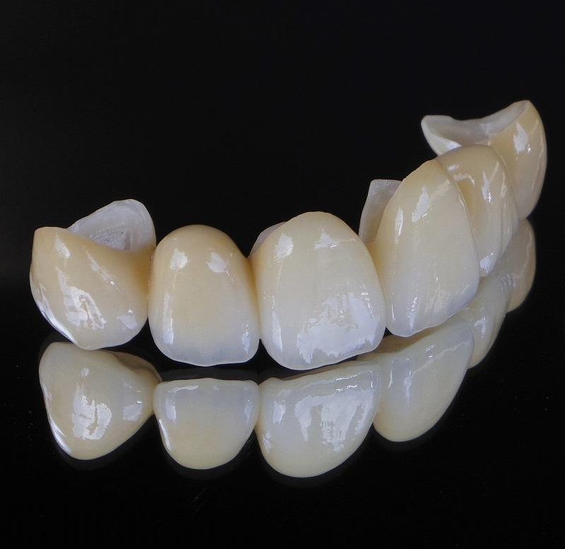 前歯4本・6本のセラミック矯正でデメリットを少なく