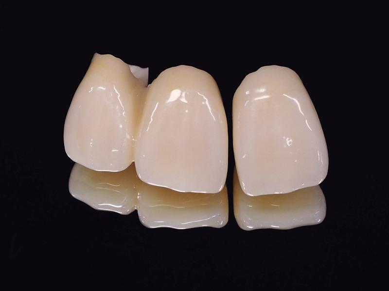 大きく歯が欠けた・折れた場合はセラミック治療