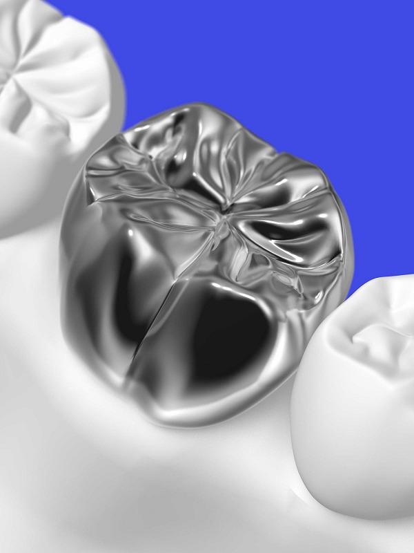 奥歯に銀歯を入れたくない・昔治療した銀歯が気になる