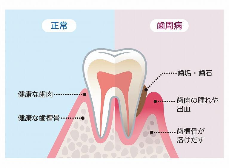歯周病とは ?