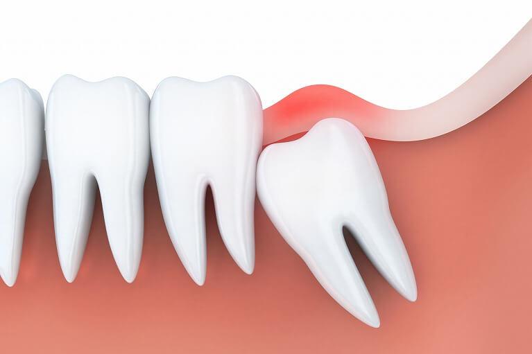 親知らずの周りの歯茎の炎症