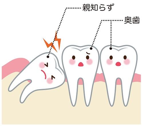 親知らずの抜歯は必要?