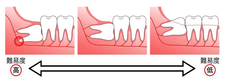 難症例の親知らず抜歯も対応可能